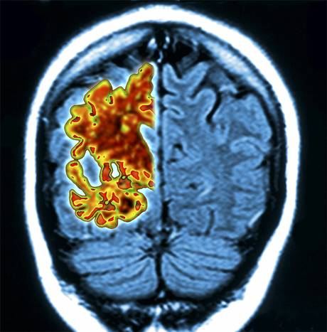 Alzheimer – un diagnostic précoce est-ilpossible?